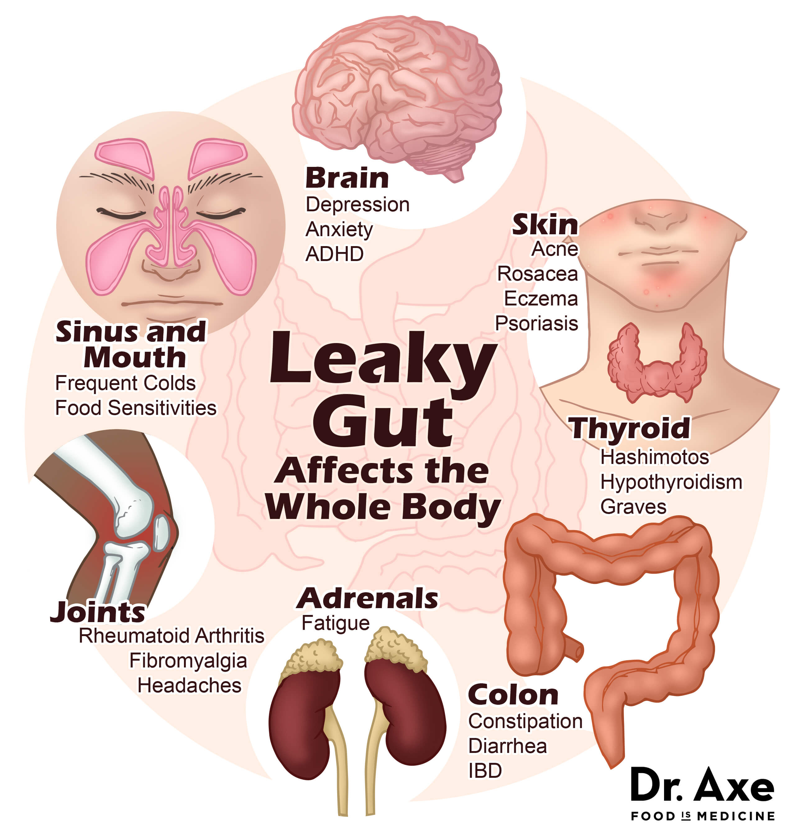leaky gut symptoms - Babbling Panda